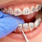 The significance of orthodontic treatment